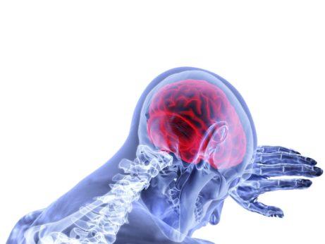 Alzheimer v mozku po dýchání kovového prachu