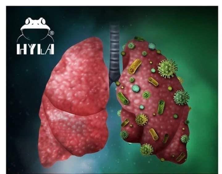 plíce pocovid 19 pomůže rozdýchat hyla